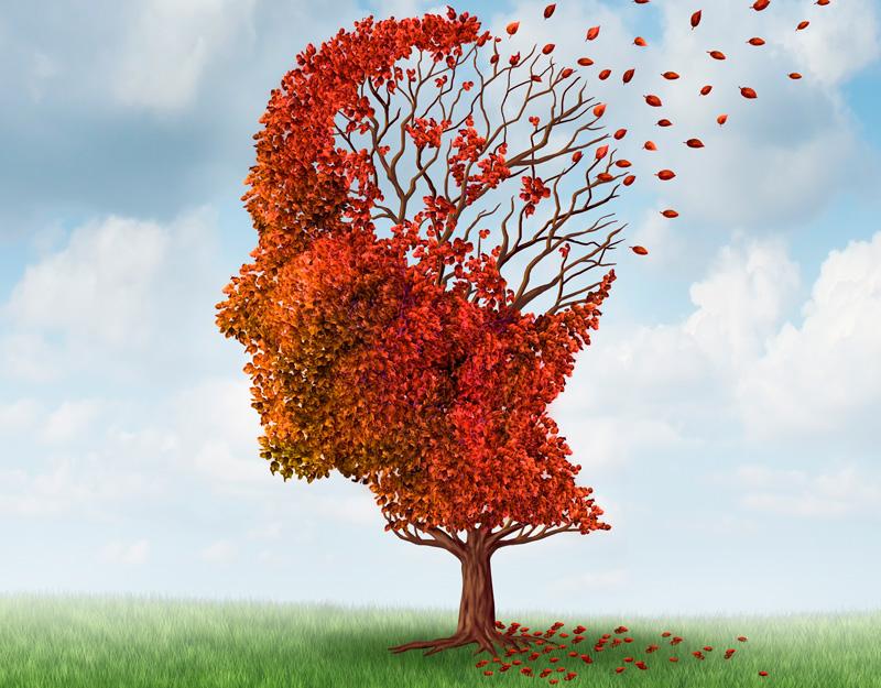 neurologia esclerosis lateral doctor huete herrera neurologo