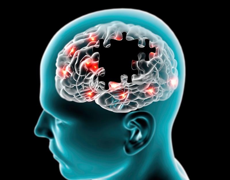 neurologia parkinson doctor huete herrera neurologo