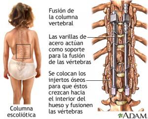 cirugia escoliosis pediatrica