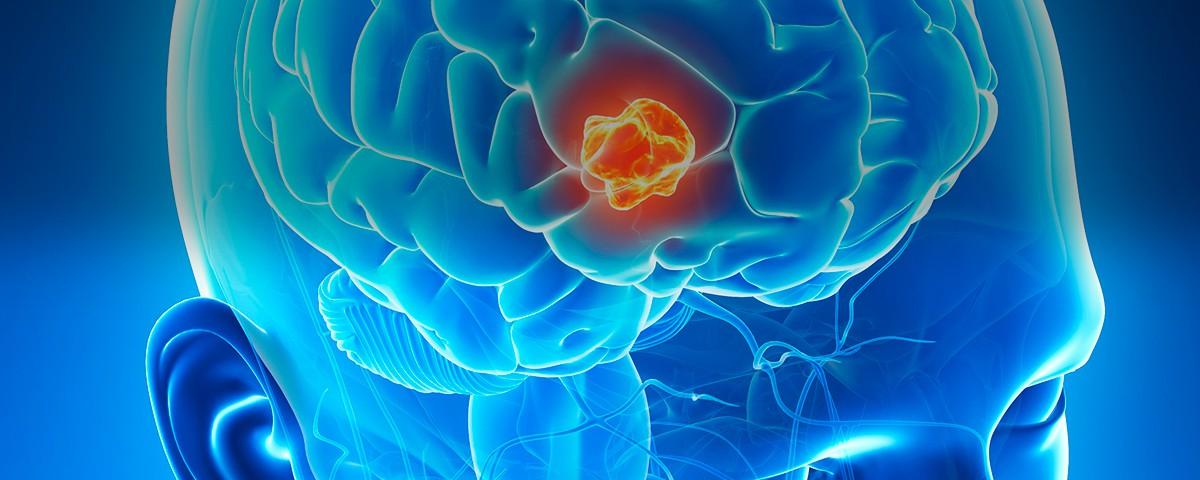 cirugia neurinomas - doctor huete neurocirujano