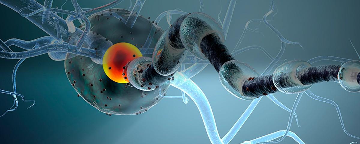 Tumores de nervio periférico - Dr. Antonio Huete Allut..