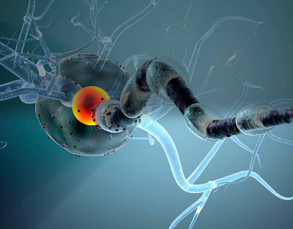 cirugia tumor nervio periferico - doctor huete neurocirujano