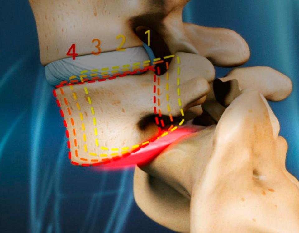 cirugia espondilotistesis - doctor huete neurocirujano