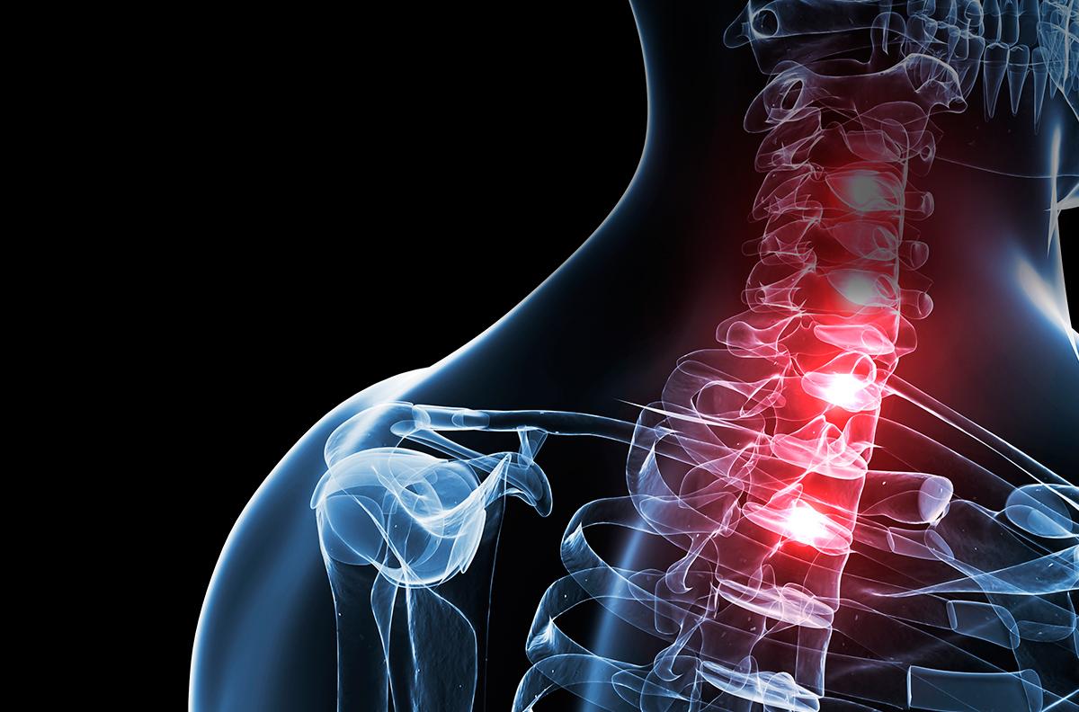 cirugia hernia cervicales - doctor huete neurocirujano