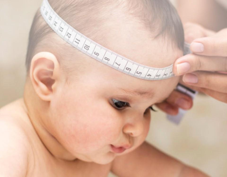 neurocirugia infantil hidrocefalia doctor huete neurocirujano