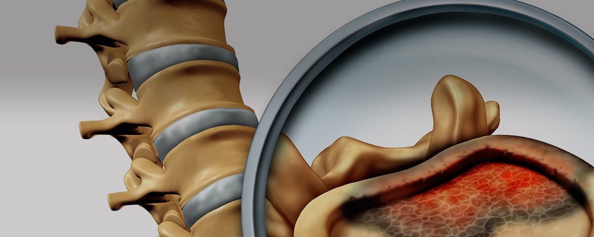 cirugia tumor vertebral - doctor huete neurocirujano