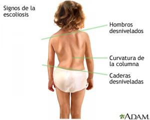 signos escoliosis pediatrica
