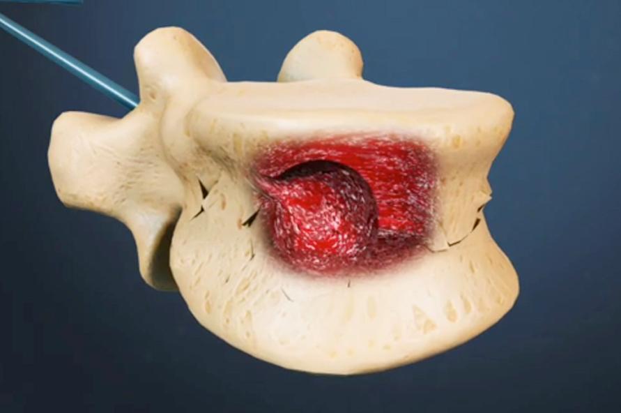 cifoplastia doctor huete neurocirujano
