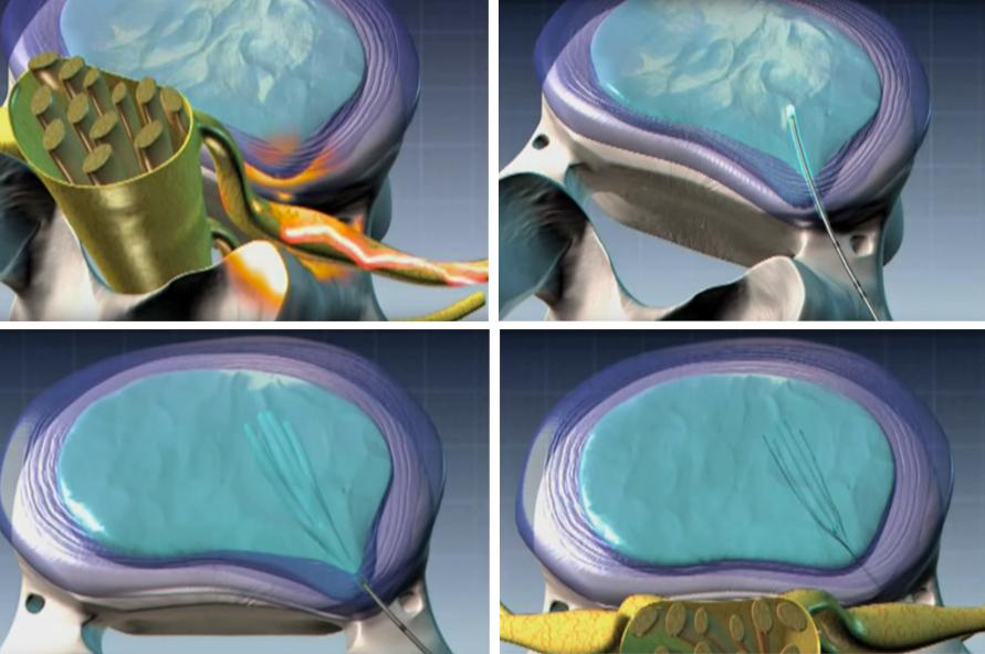nucleoplastia doctor huete neurocirujano