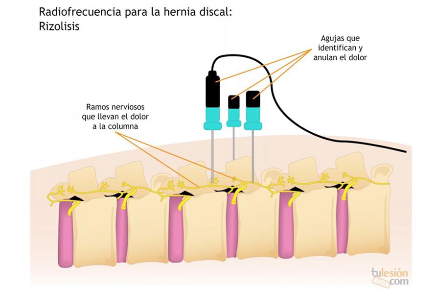 radiofrecuencia doctor huete neurocirujano